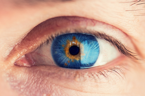 Mystic Blue Eye