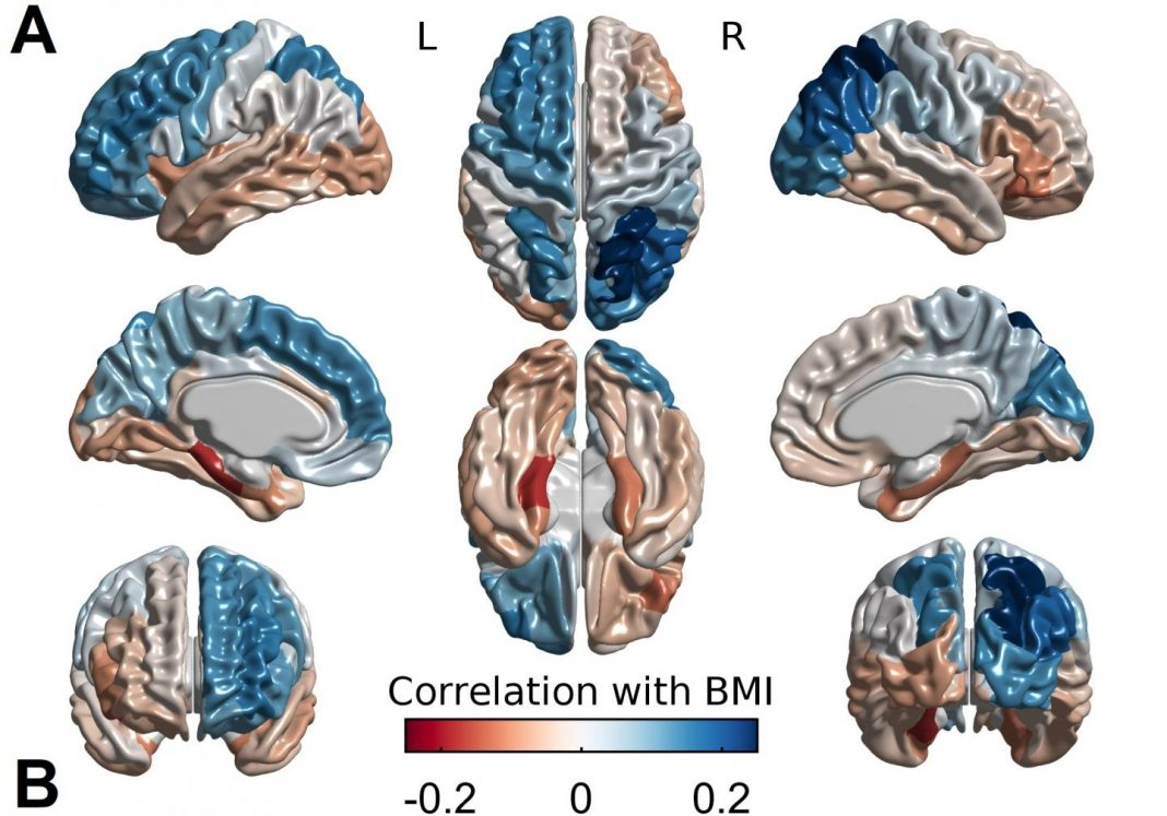 How cortical thickness associates with BMI. Body mass index relates positively with cortical thickness in blue areas
