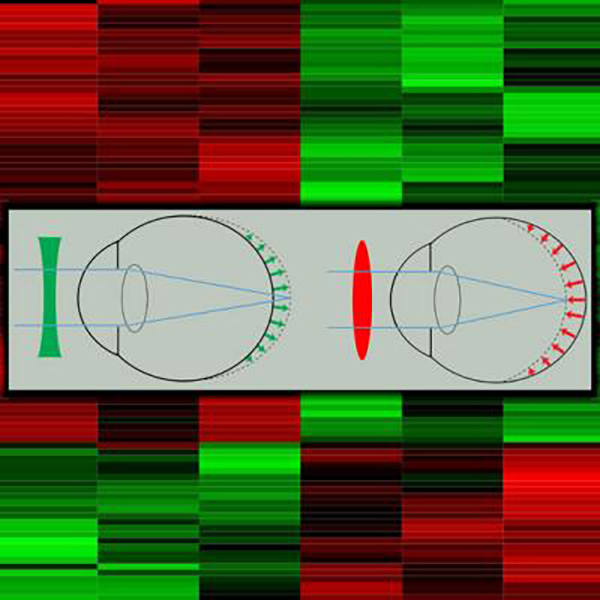 This image shows the effect of negative (green) and positive (red) lenses on eye growth and the heatmap depicting clusters of genes differentially expressed in the retina in response to optical defocus. [Andrei V. Tkatchenko]