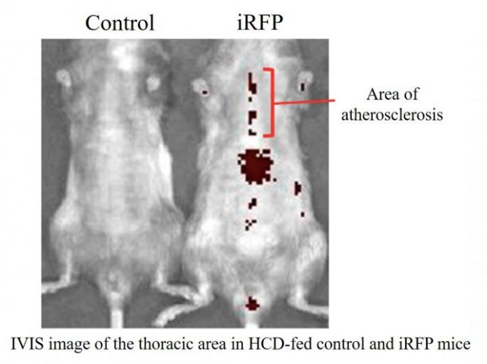 IVIS image of the thoracic area in HCD-fed control and iRFP mice. [University of Tsukuba]