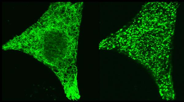 Microscope images of the regulatory protein STIM1