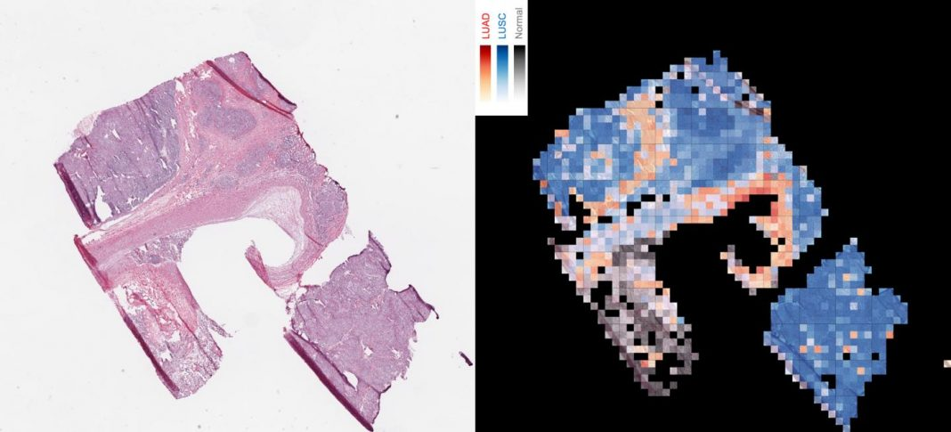 The image shows how an AI tool analyzes a slice of cancerous tissue to create a map that tells apart two lung cancer types