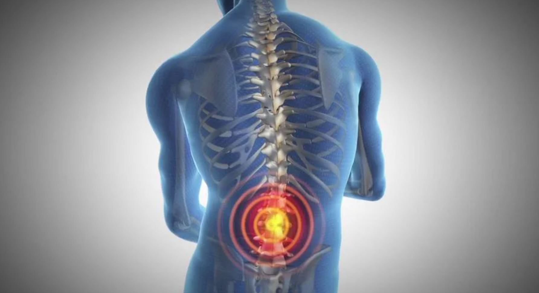 Chronic Back Pain Linked to Three Genetic Variants
