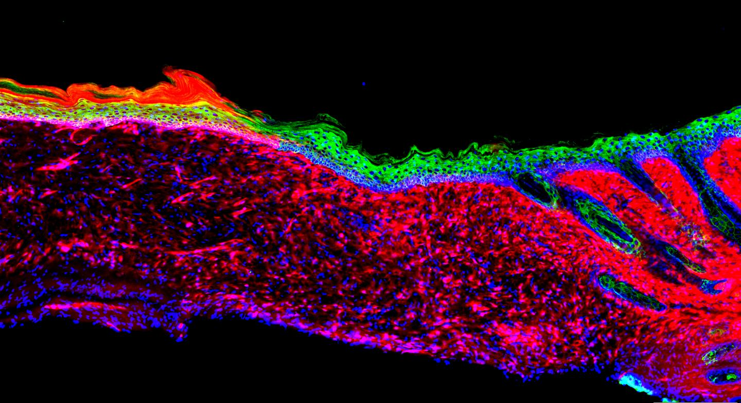 Pouring Stem Cell Factors into Wounds Could Heal Skin Ulcers