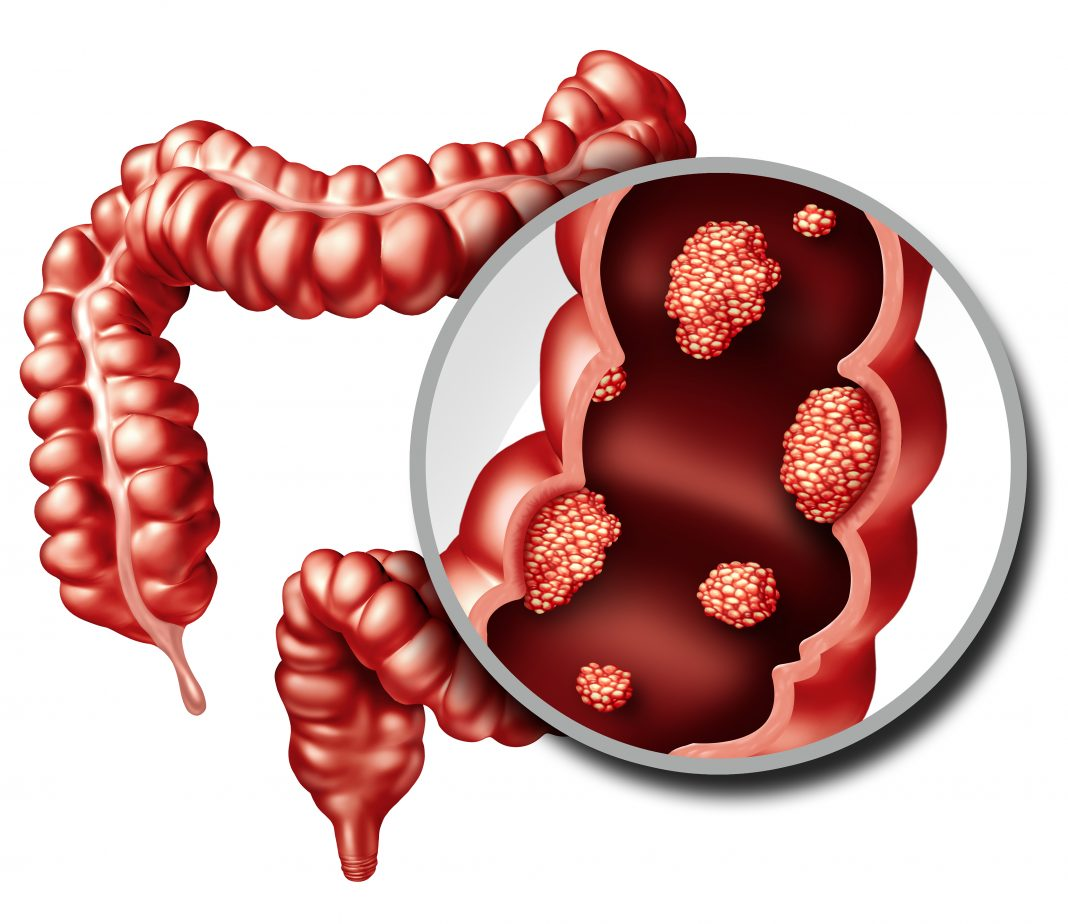 Colorectal Cancer Gen Genetic Engineering And Biotechnology News