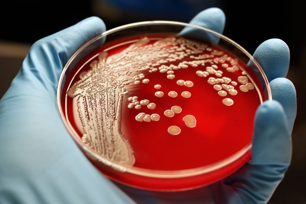 MRSA colonies on blood agar plate