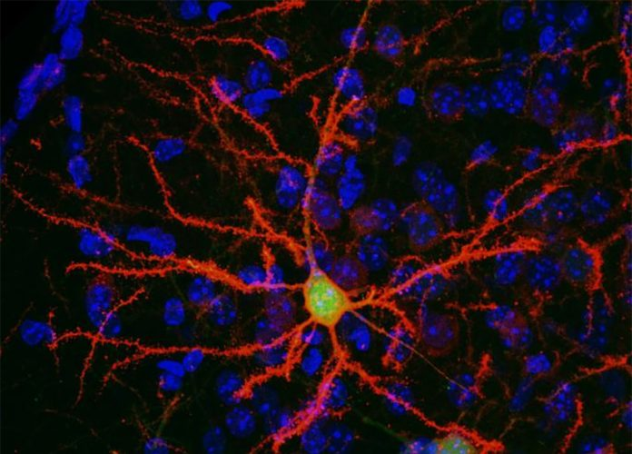 neuron in the mouse brain