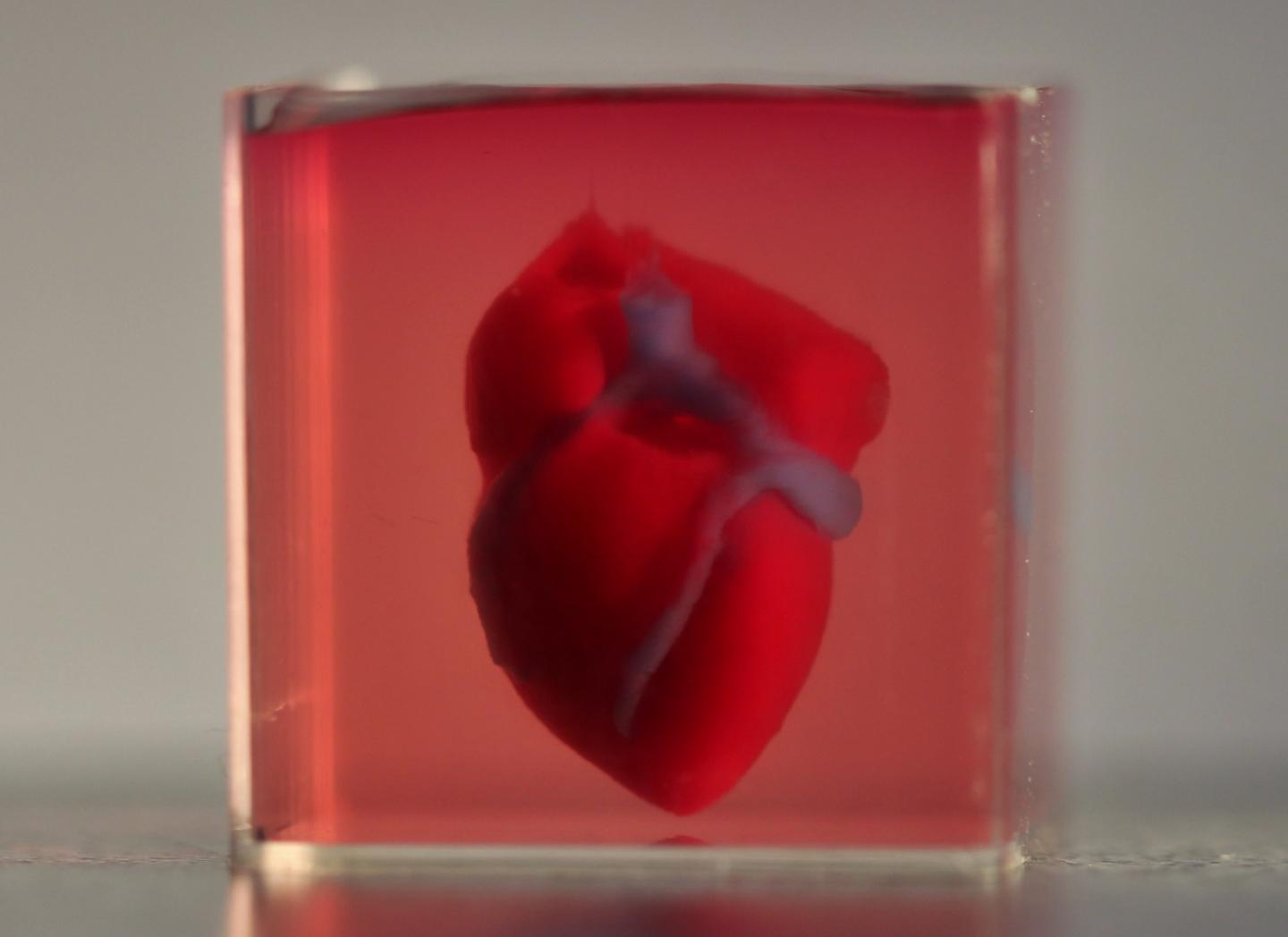 First 3D Engineered Vascularized Human Heart Is Bioprinted