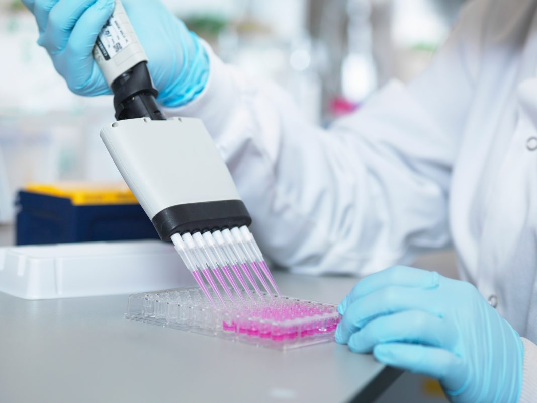 Scientist using multi-channel pipette to fill multiwell plate for analysis of antibodies by ELISA assay,