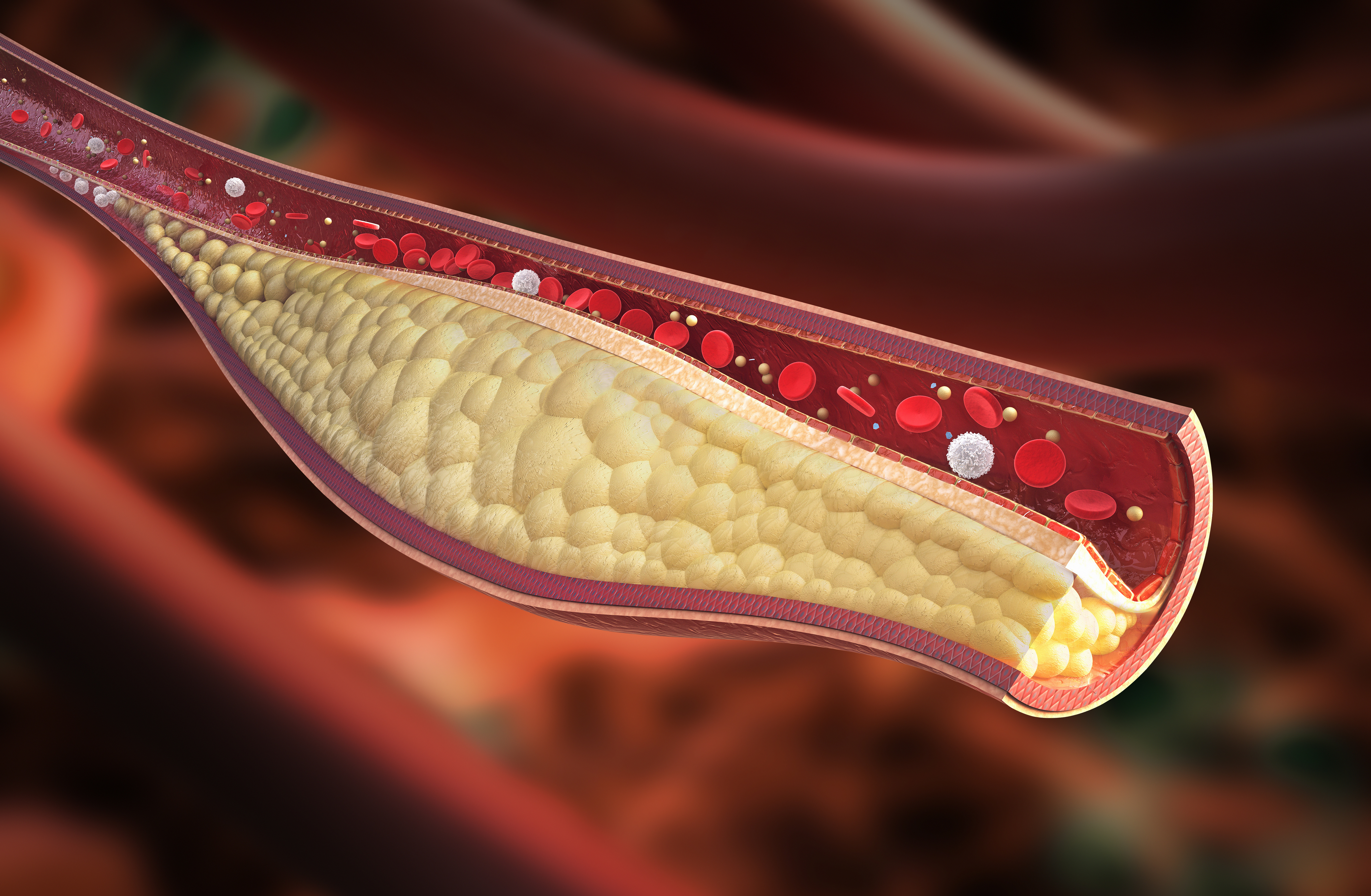 Preclinical Study Shows Safety, Efficacy, and Durability of Lowering LDL-Cholesterol Levels Long-Term in Non-Human Primates