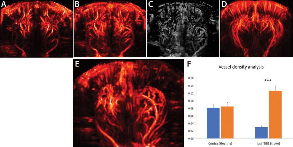 Figure 3. Rat fUS imaging.