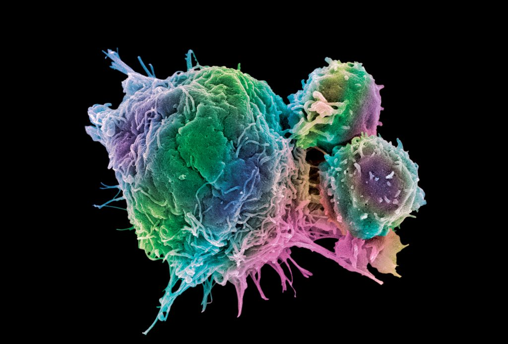 Cancer cell and T lymphocytes, SEM