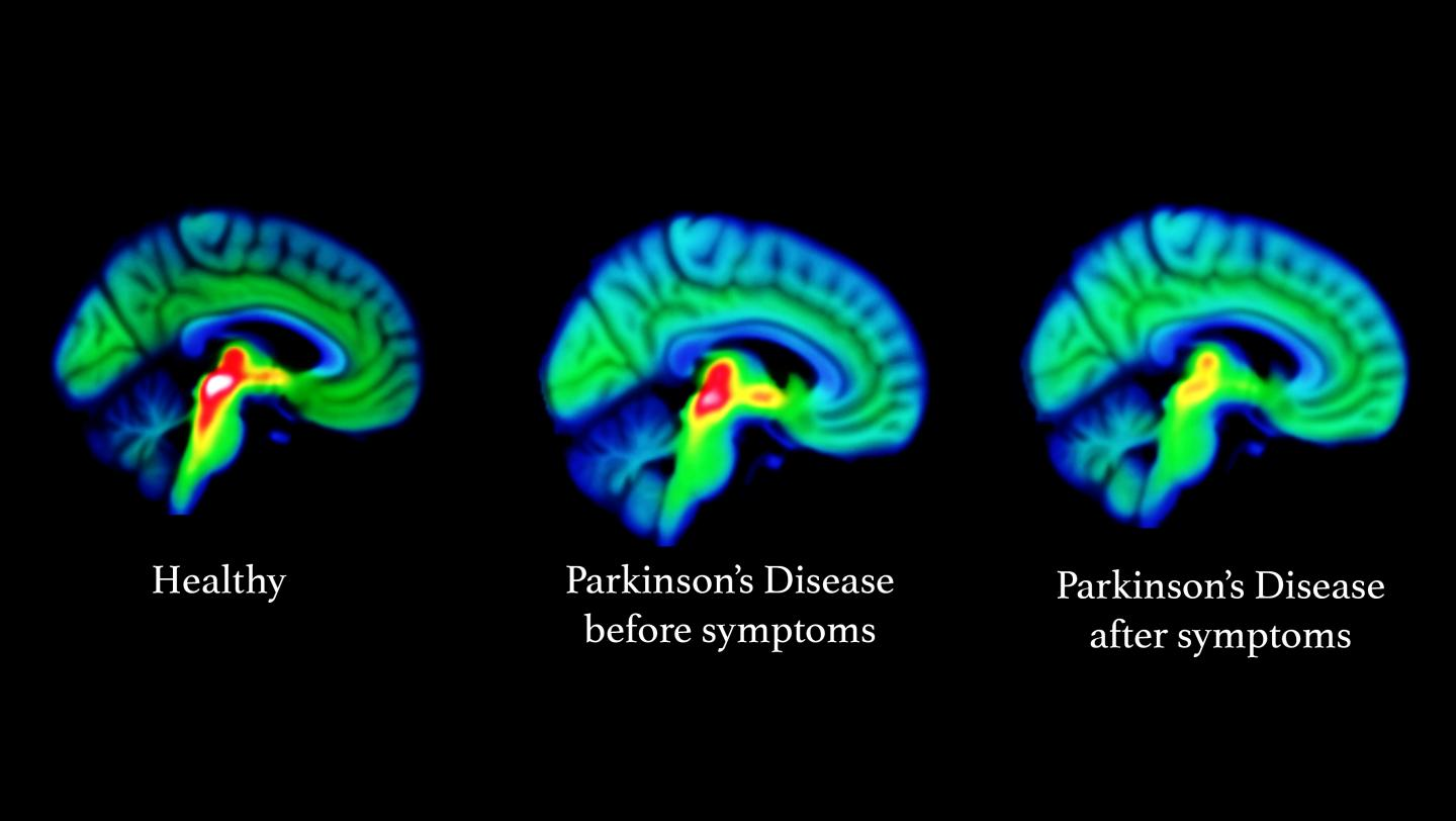 Is weight loss a symptom of parkinson disease