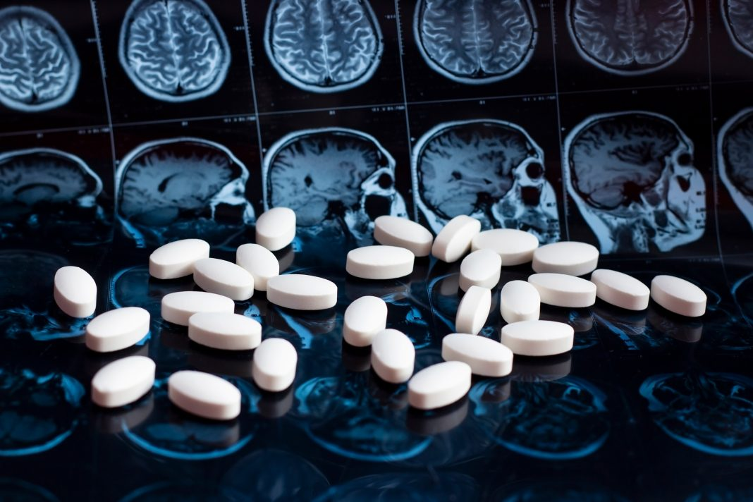Scan of brain and medication
