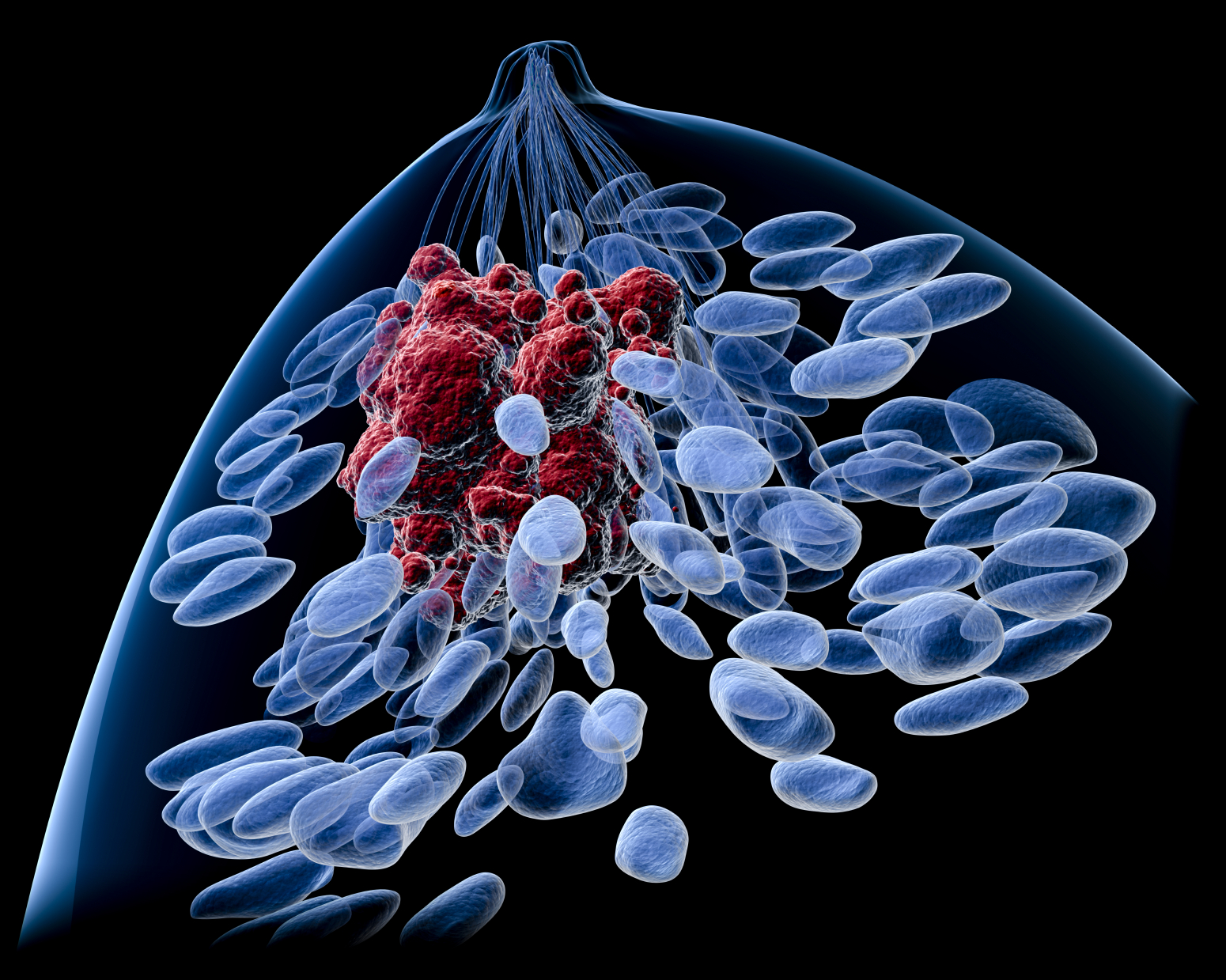 From Foe to Friend: Breast Cancer Cells Alter Immune Cells to Metastatic State