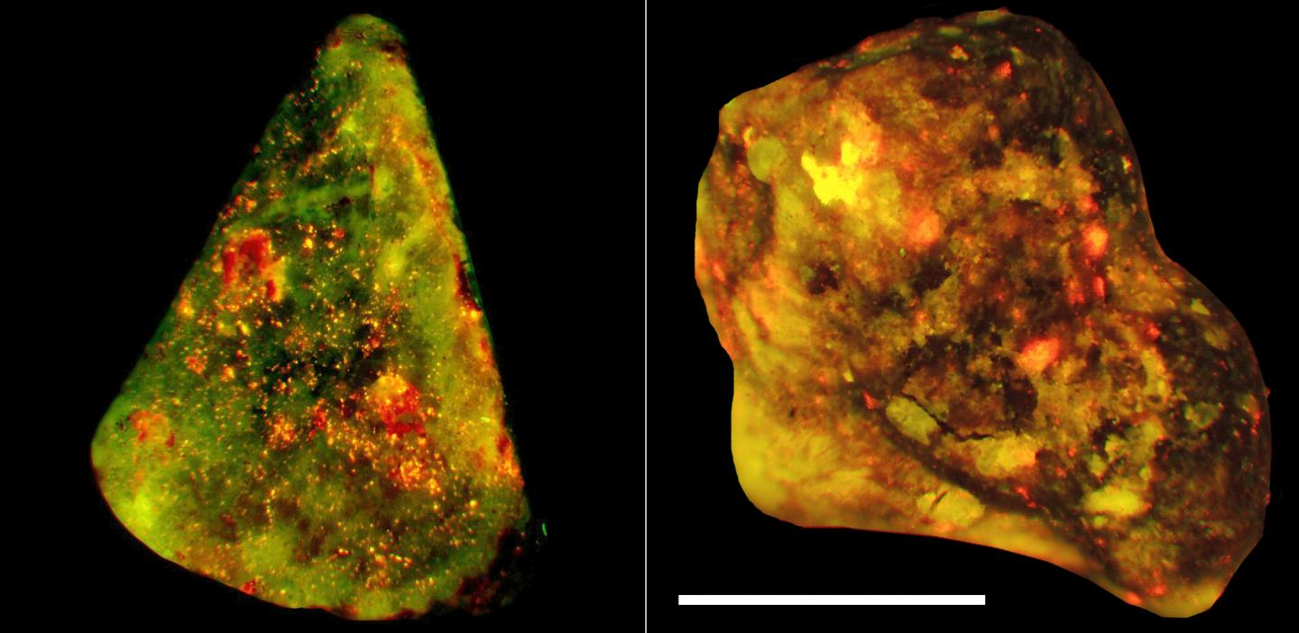 Neutrophils Shown to Play the Key Role in Gallstone Formation