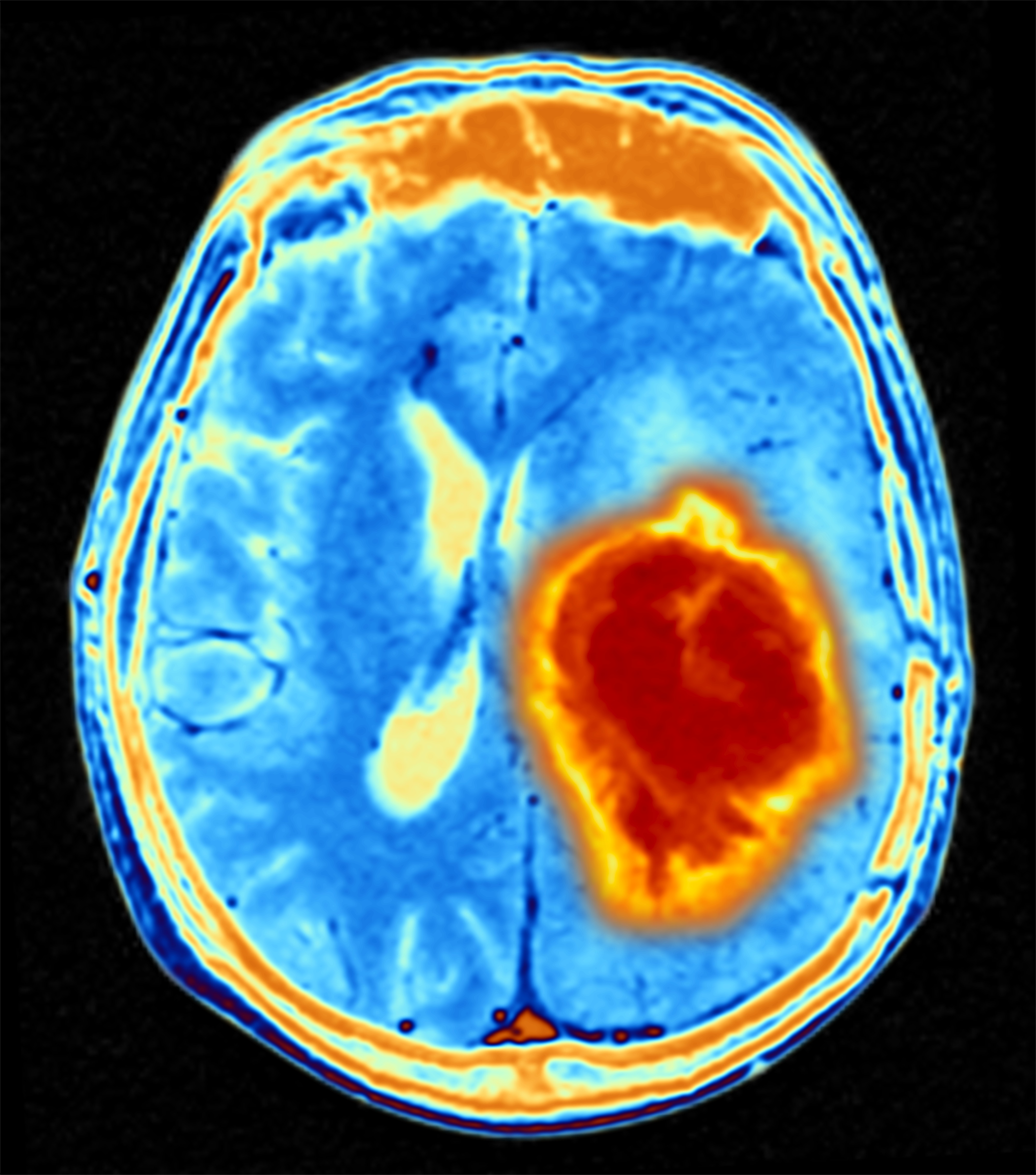Researchers Report Data from First Clinical Trial Assessing Brain Tumor Vaccine that Targets Specific Mutation
