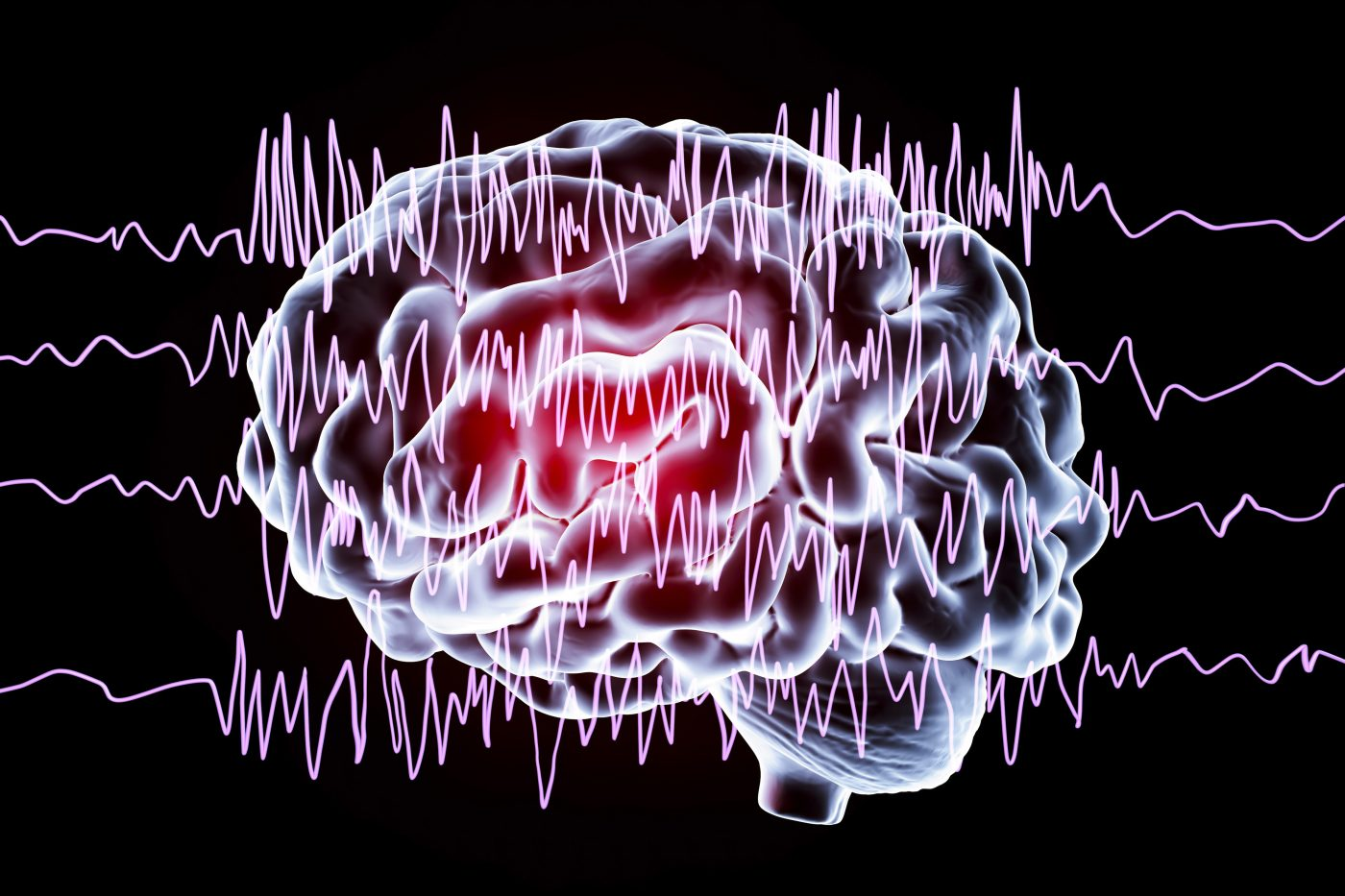 Brain Cell Study Opens Door to New Therapies for Epilepsy