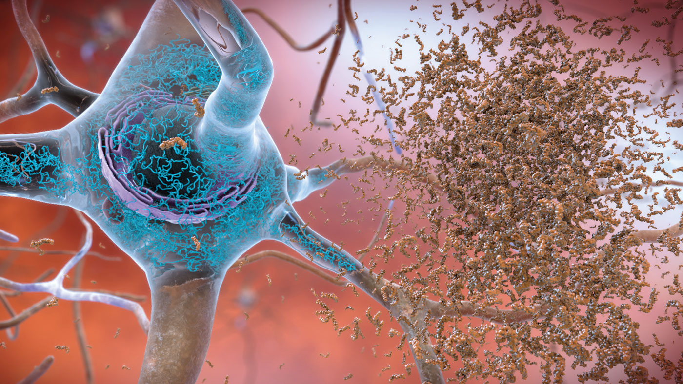 LDL Receptor Identified as Surprising Potential Therapeutic Target for Alzheimer's  Disease