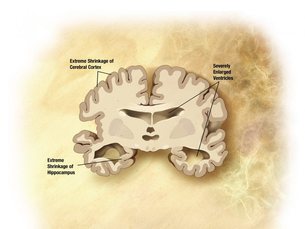 Brain with sever Alzheimer's disease