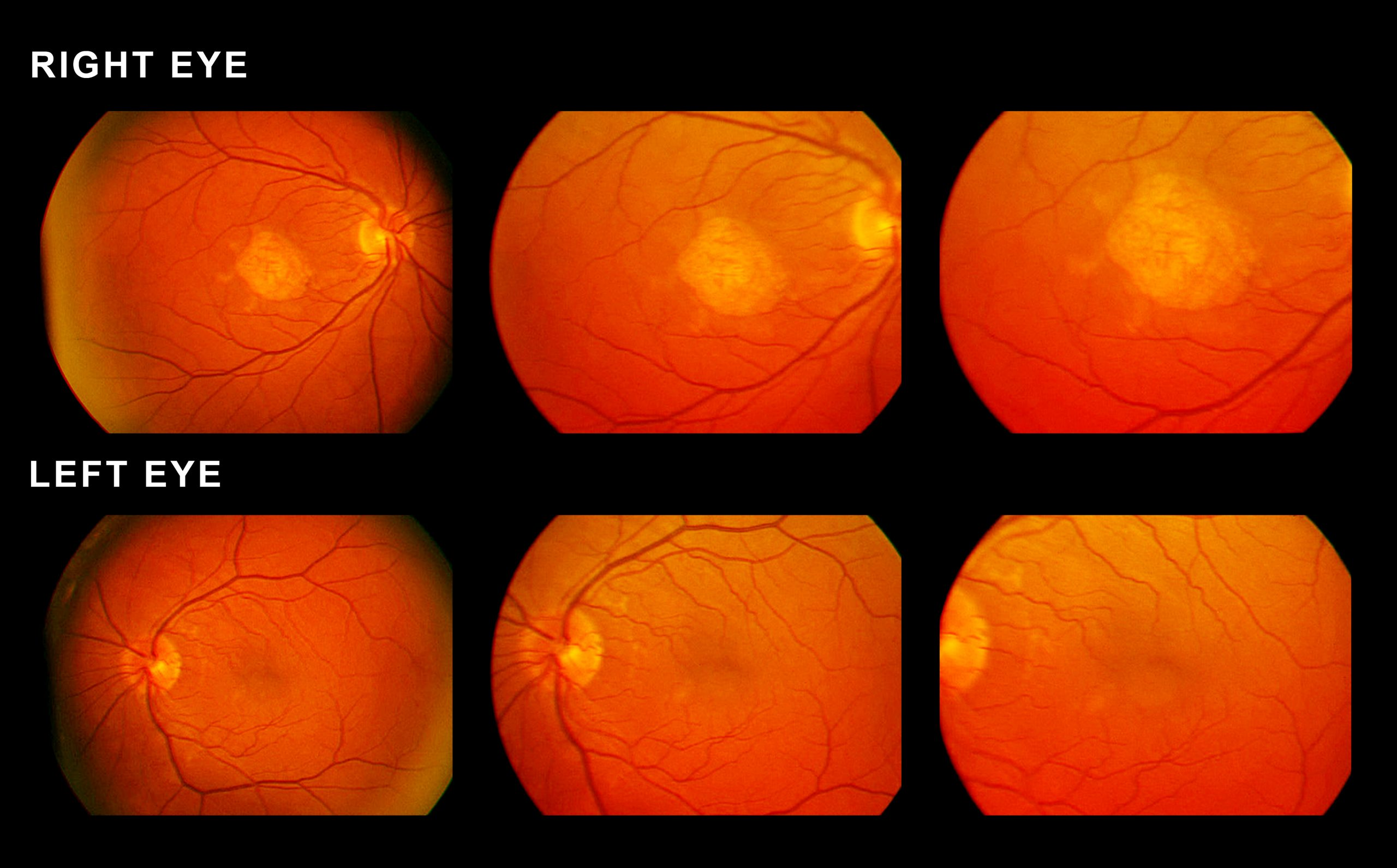 Fhr4 Protein Found Strongly Linked To Amd