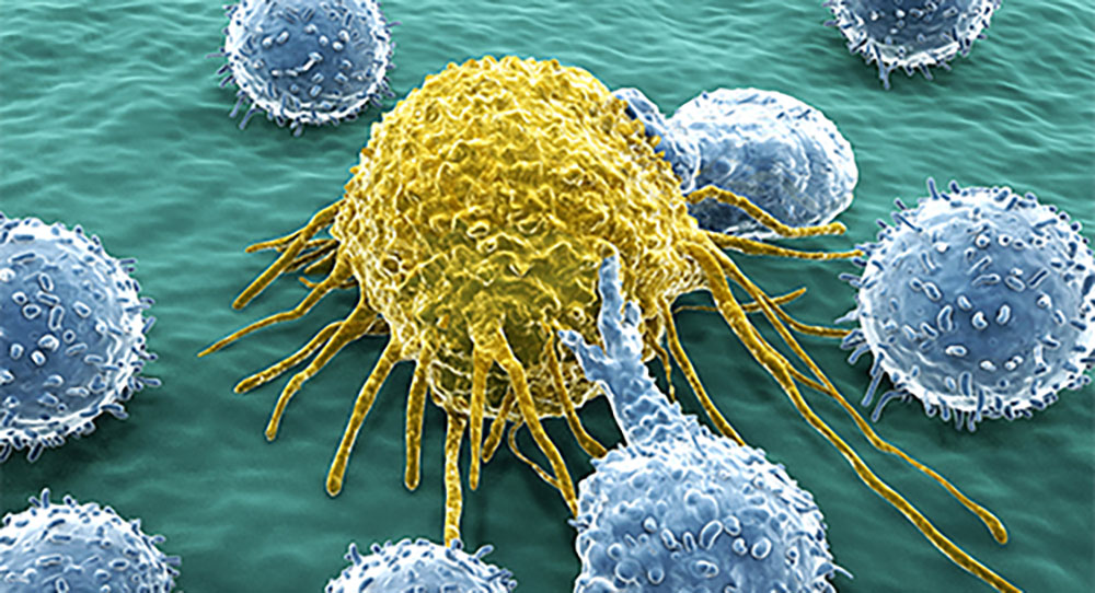 Cancer cell and Lymphocytes