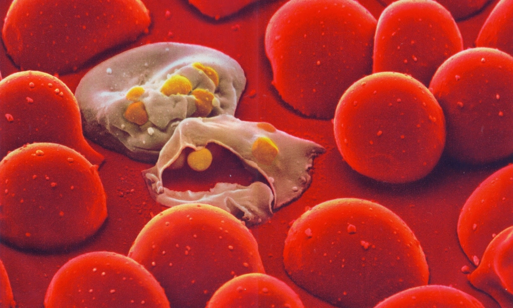 Malaria Transport Channel Identified Connecting Parasite to Red Blood Cell