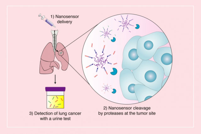 nanoparticles to detect lung cancer