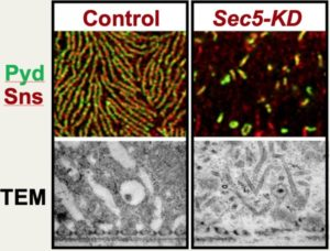 Certain Genes Essential for Proper Kidney Cell Function