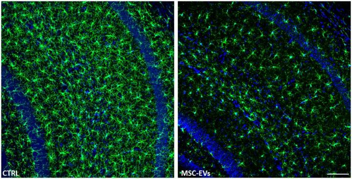 CA1 Region of the Hippocampus of AD Mouse