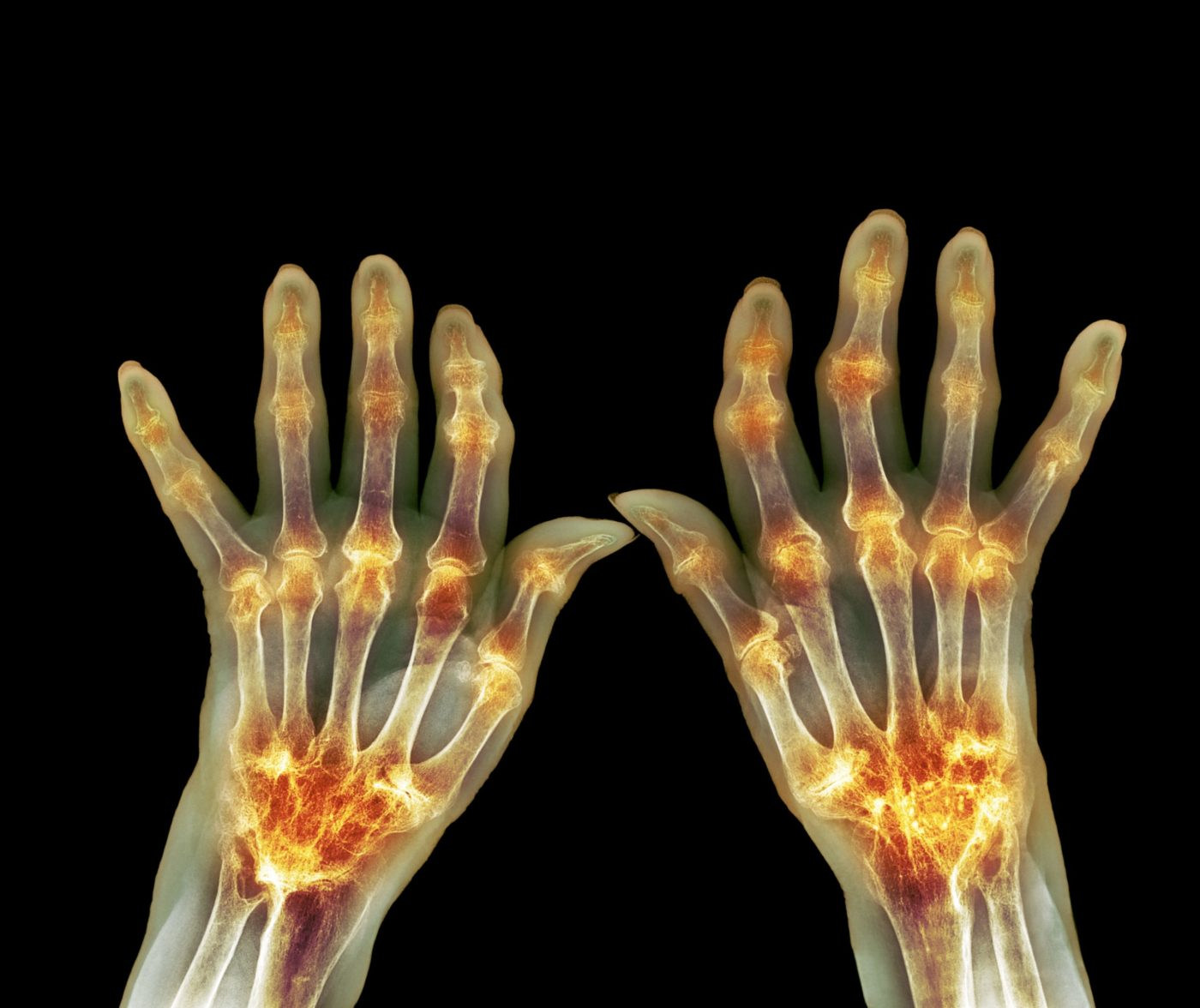 Rheumatoid Arthritis Flares Forewarned By Blood Levels Of Newly Identified Cell Type
