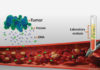 Liquid Biopsy for Bladder Cancer Could Guide Immunotherapy Options