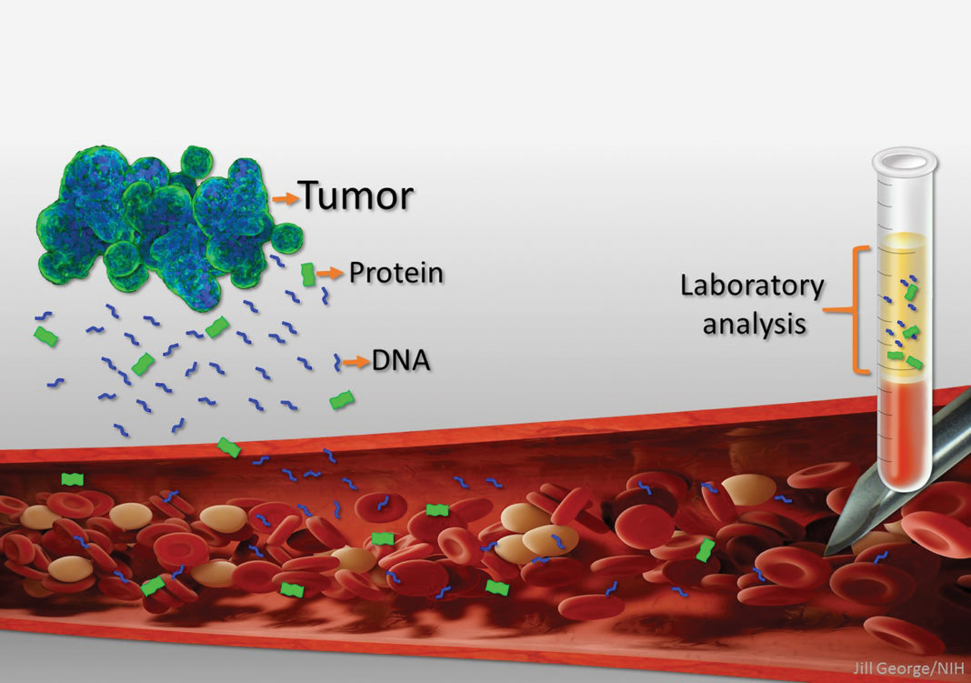 liquid biopsies are the molecular fragments shed by tumors