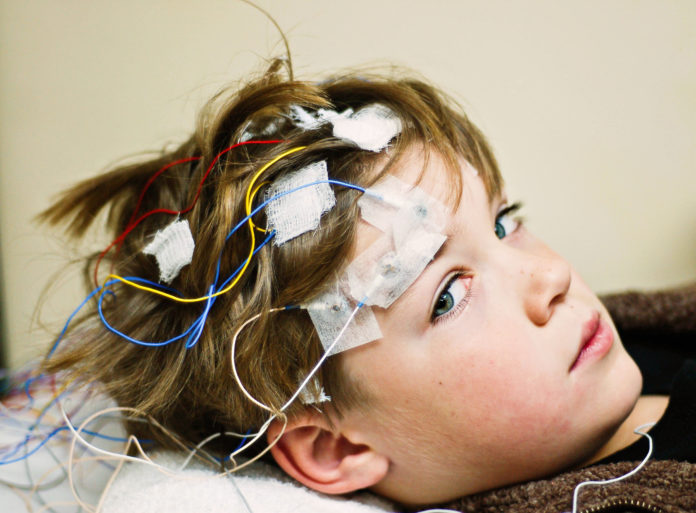 Boy getting an EEG