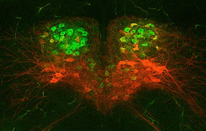 Swallowing Difficulties May Be Caused by Misfiring Neurons