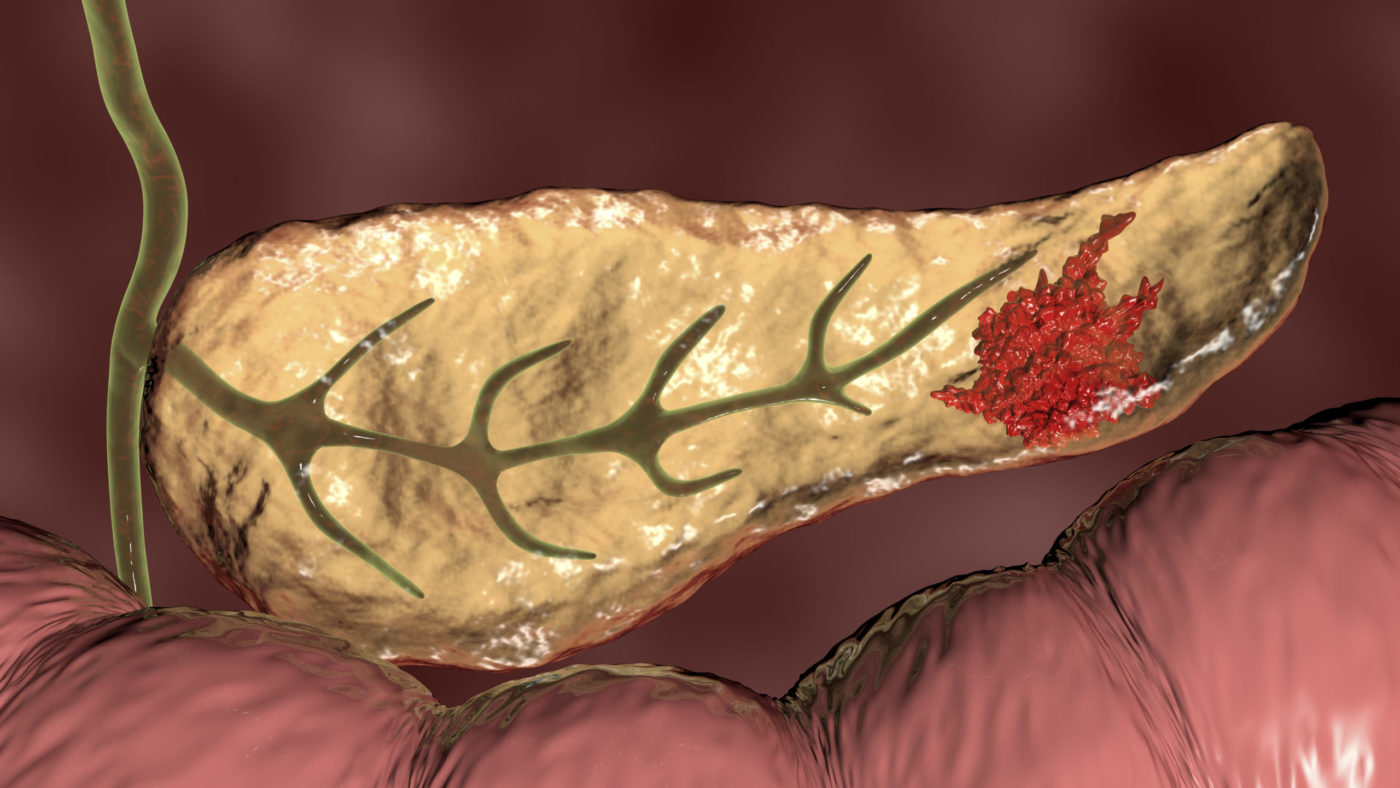 Most Deadly Form of Pancreatic Cancer Reveals Potential Therapeutic Targets