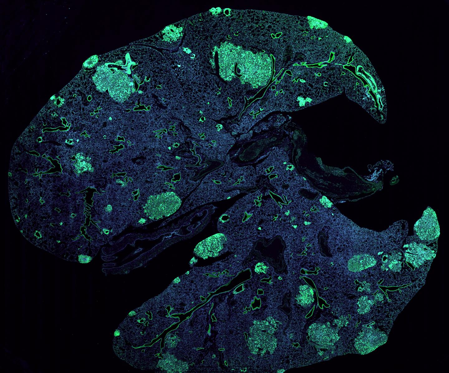 Cancer Cells Seize Signaling Pathway Used by Neurons to Metastasize