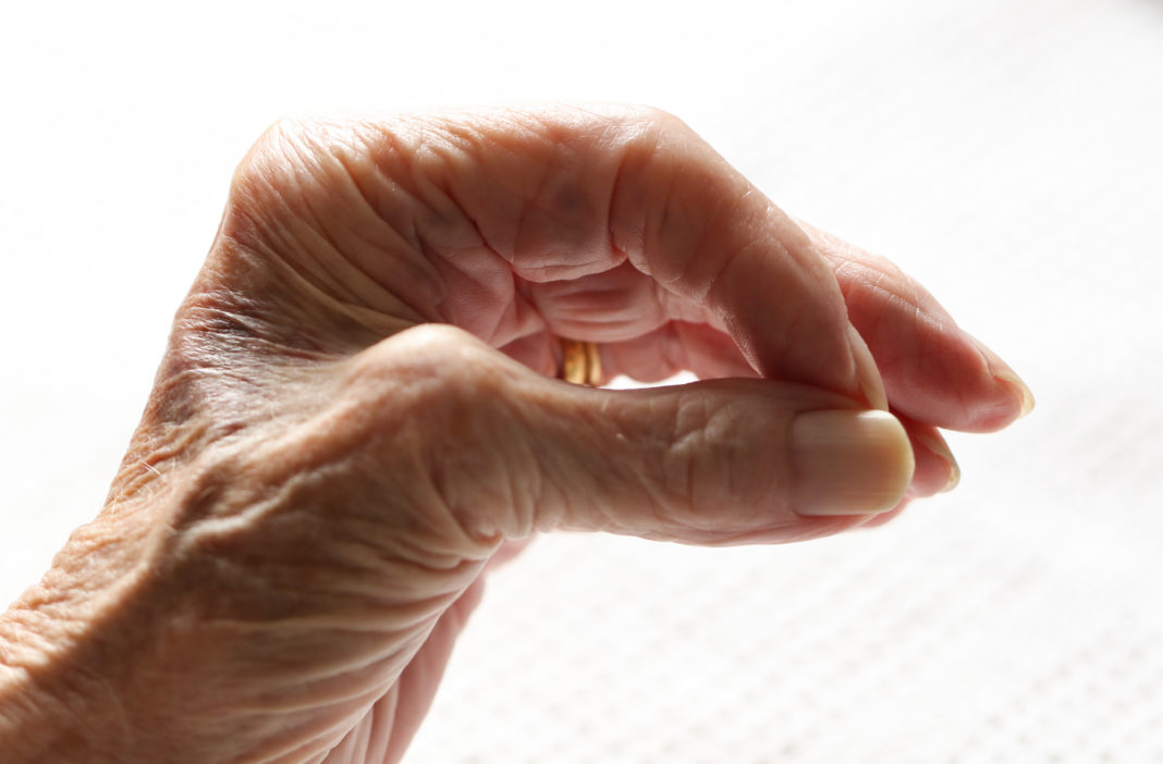 The hand of a senior lady suffering from Parkinson's disease.