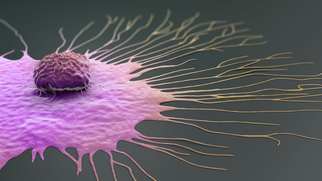Migrating breast cancer cell, illustration