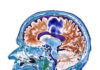 Overcoming Immune Suppression in Glioblastoma with Engineered NK Cells