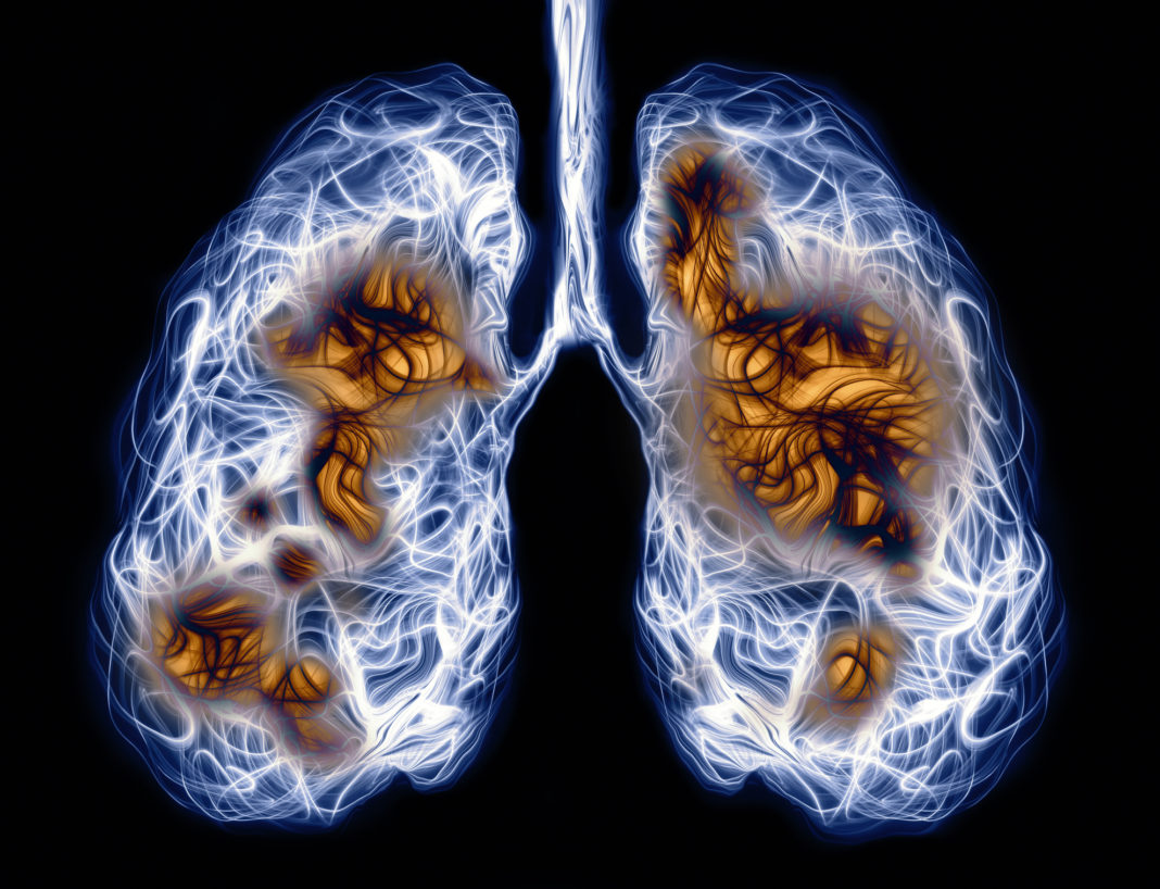 Infection in lungs