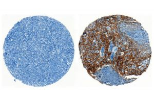 ENPP1 is a new therapeutic target for cancer