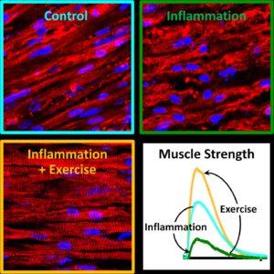 Exercise blocks inflammation in muscles