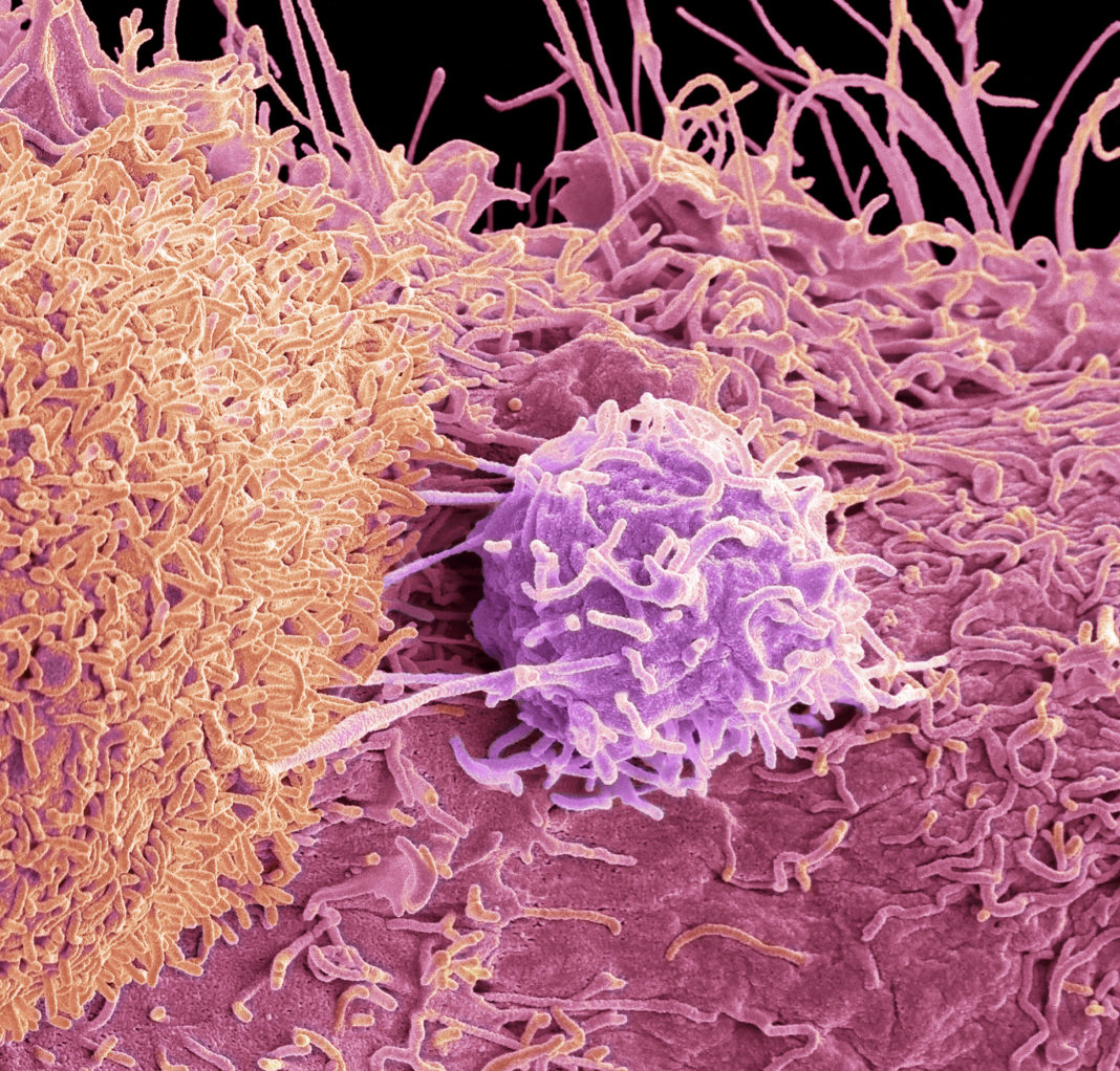Prostate cancer cells, SEM