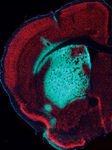 cerebellum of a wild-type mouse