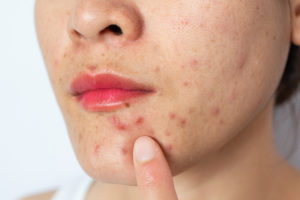 Close-up of woman half face with problems of acne inflammation (Papule and Pustule) and scar occur on her face.
