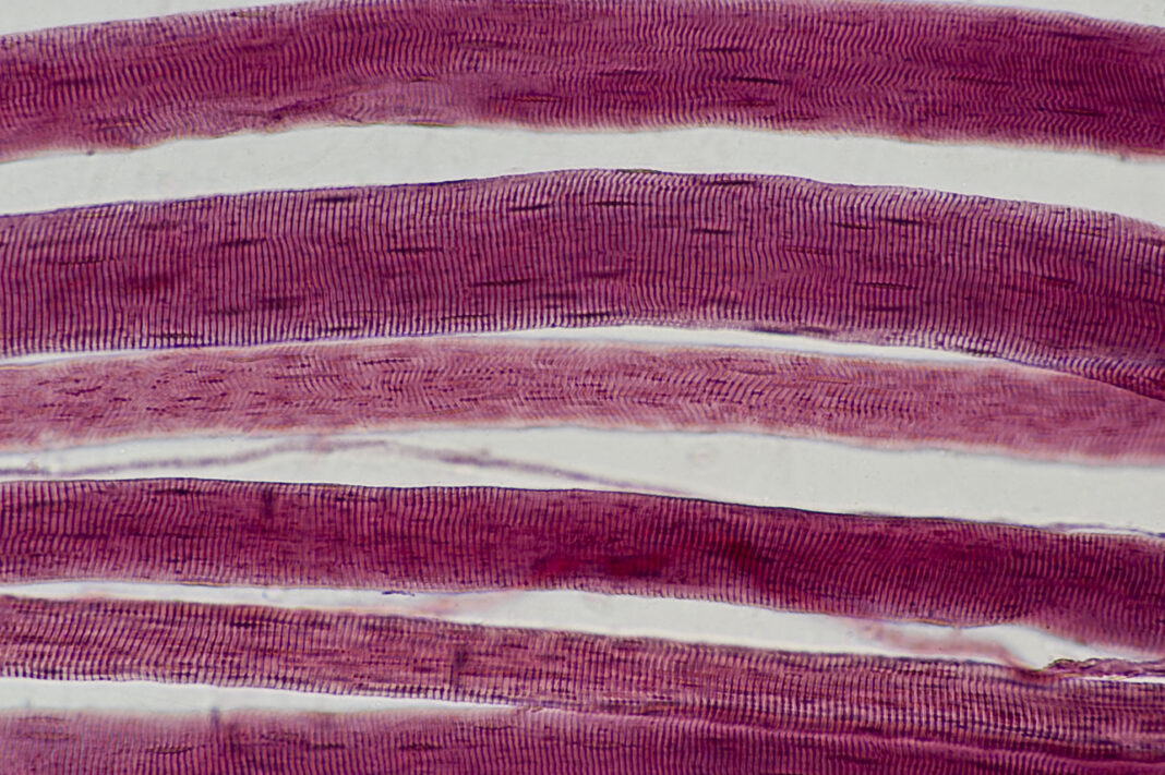 Skeletal Muscle Fibers (Cells) with Striations