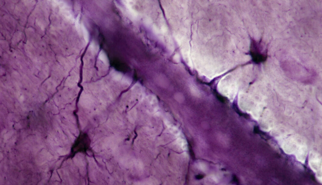 Astrocytes; neuroglial cells, 250X at 35mm. Shows: processes (perivascular feet) of neuroglial cells in contact with a brain capillary. These cells may help to form the blood-brain barrier to drugs, antibiotics, etc.