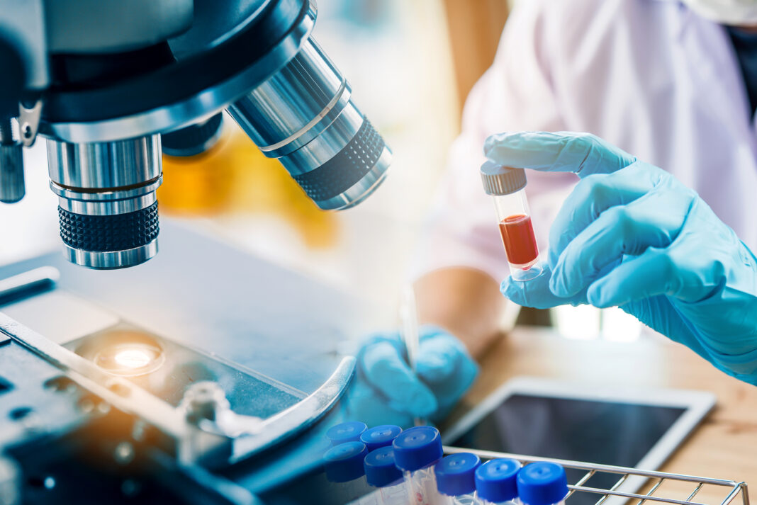 lab technician assistant analyzing a blood sample in test tube at laboratory with microscope. Medical, pharmaceutical and scientific research and development concept.