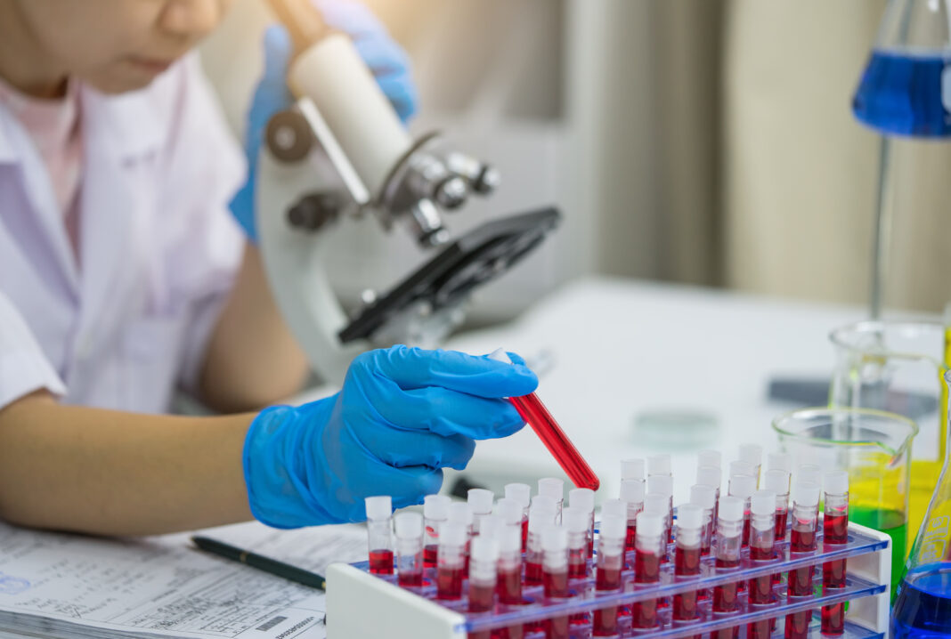 Lab worker putting medical blood sample in place after examining for sediments